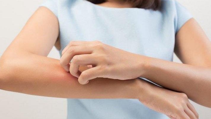 Beragam Cara Mengobati Alergi Dingin Anti Kambuh
